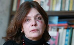 Наталья Сейбель после избиения